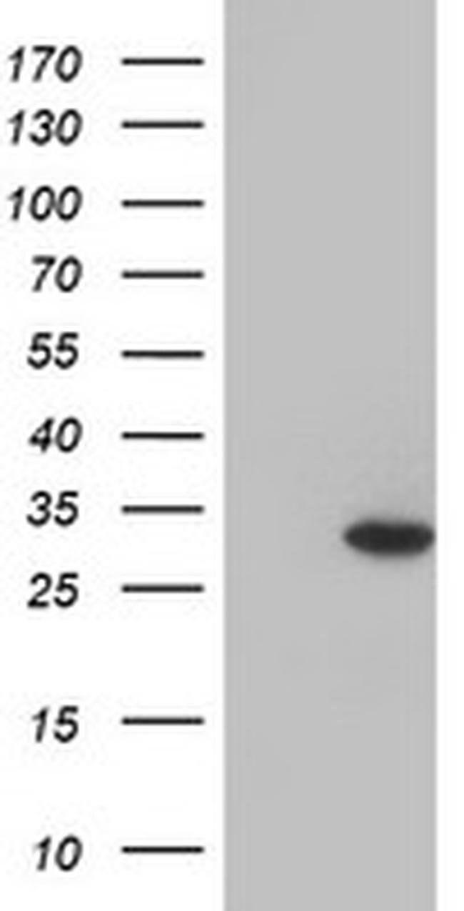 GSTO2 Mouse anti-Human, Clone: OTI4H1, liquid, TrueMAB  100 µL; Unconjugated