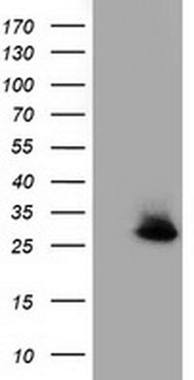 GSTT2 Mouse anti-Human, Clone: OTI2E3, liquid, TrueMAB  100 µL; Unconjugated