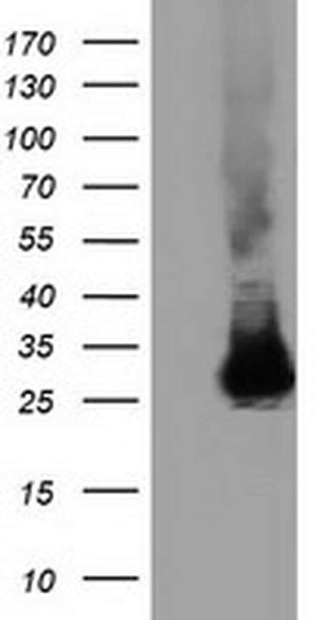 GSTT2 Mouse anti-Human, Clone: OTI6B7, liquid, TrueMAB  100 µL; Unconjugated