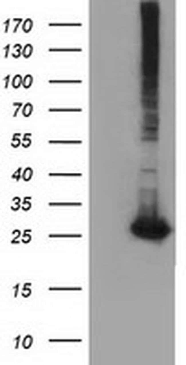 GSTT2 Mouse anti-Human, Clone: OTI8A10, liquid, TrueMAB  100 µL; Unconjugated