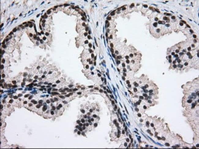 H6PD Mouse anti-Human, Clone: OTI2A7, liquid, TrueMAB  30 µL; Unconjugated