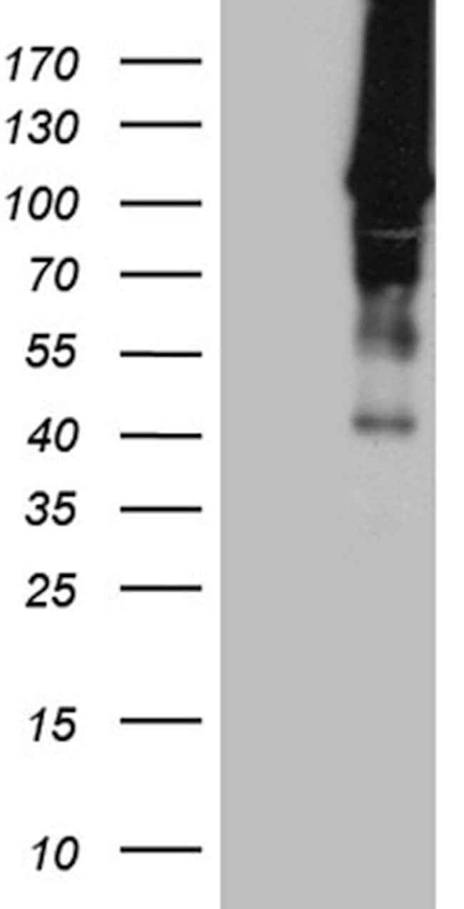 HACE1 Mouse anti-Human, Clone: OTI4E10, lyophilized, TrueMAB  100 µg;