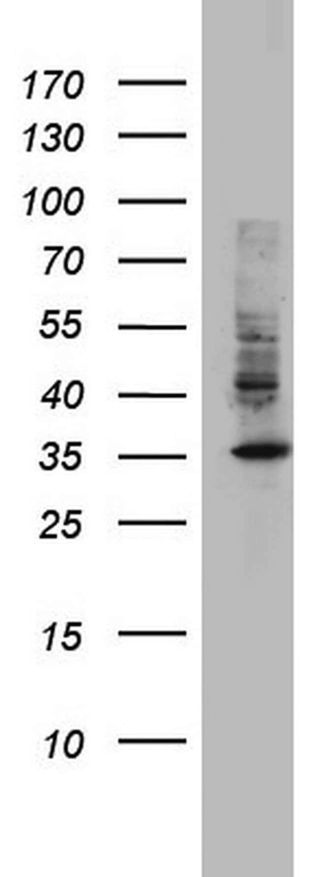 HADH Mouse anti-Human, Clone: OTI6F10, lyophilized, TrueMAB  100 µg;