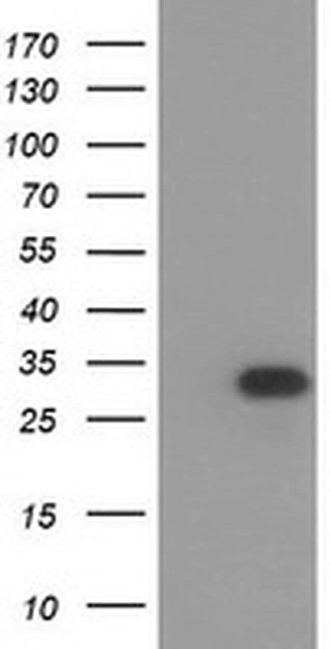 HAGHL Mouse anti-Human, Clone: OTI3H2, liquid, TrueMAB  100 µL; Unconjugated