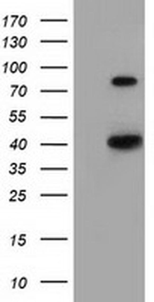 HAO1 Mouse anti-Human, Clone: OTI3E7, liquid, TrueMAB  100 µL; Unconjugated