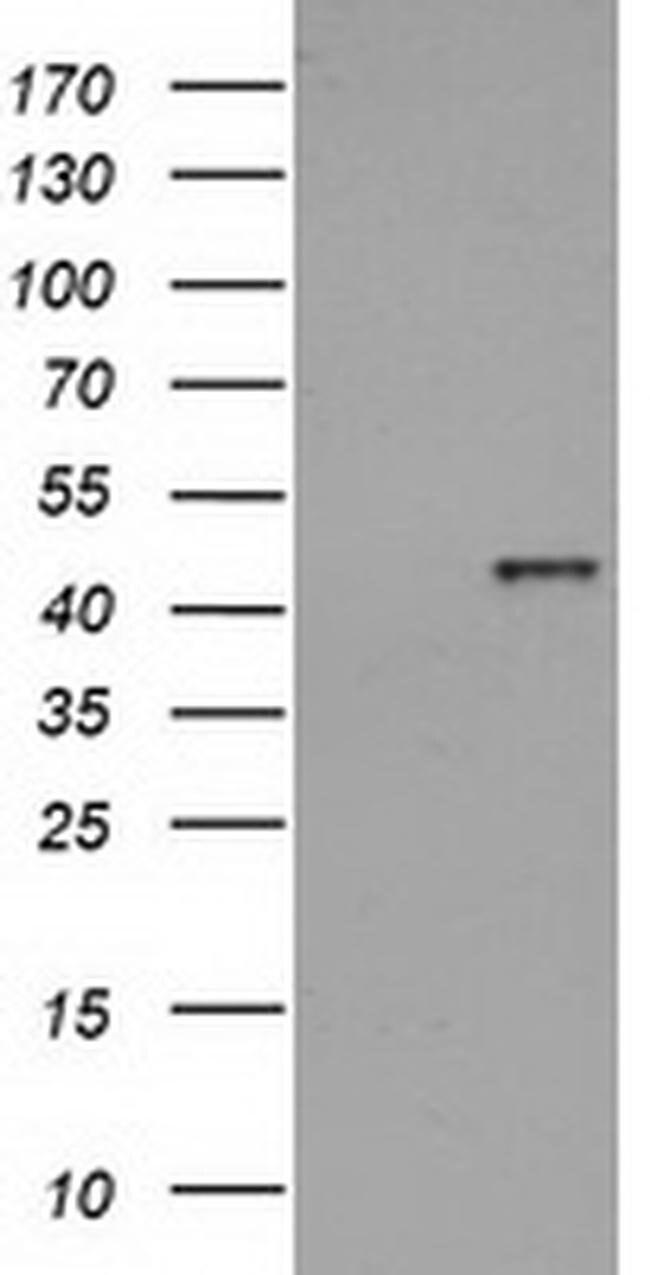 HAO1 Mouse anti-Human, Clone: OTI5F4, liquid, TrueMAB  100 µL; Unconjugated