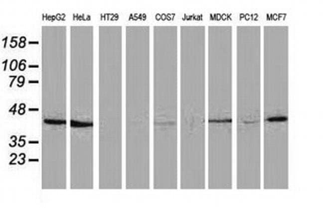 HAO1 Mouse anti-Canine, Human, Rat, Clone: OTI5C3, liquid, TrueMAB  100