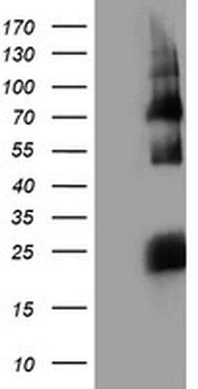 HARS2 Mouse anti-Human, Clone: OTI2D6, liquid, TrueMAB  100 µL; Unconjugated