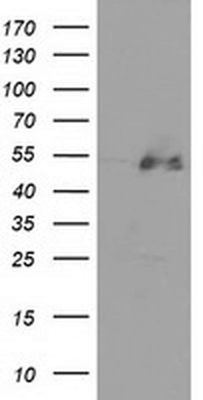 HDAC1 Mouse anti-Human, Clone: OTI2E9, liquid, TrueMAB  100 µL; Unconjugated