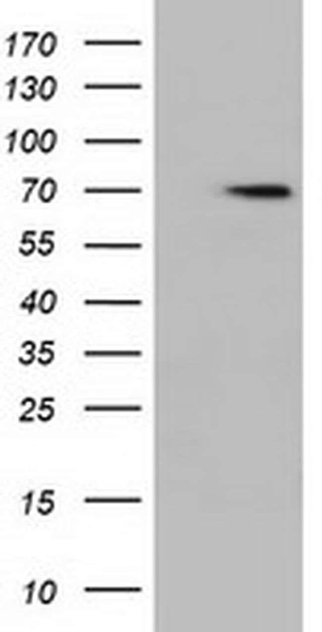 HDAC10 Mouse anti-Human, Clone: OTI1B1, liquid, TrueMAB  100 µL; Unconjugated