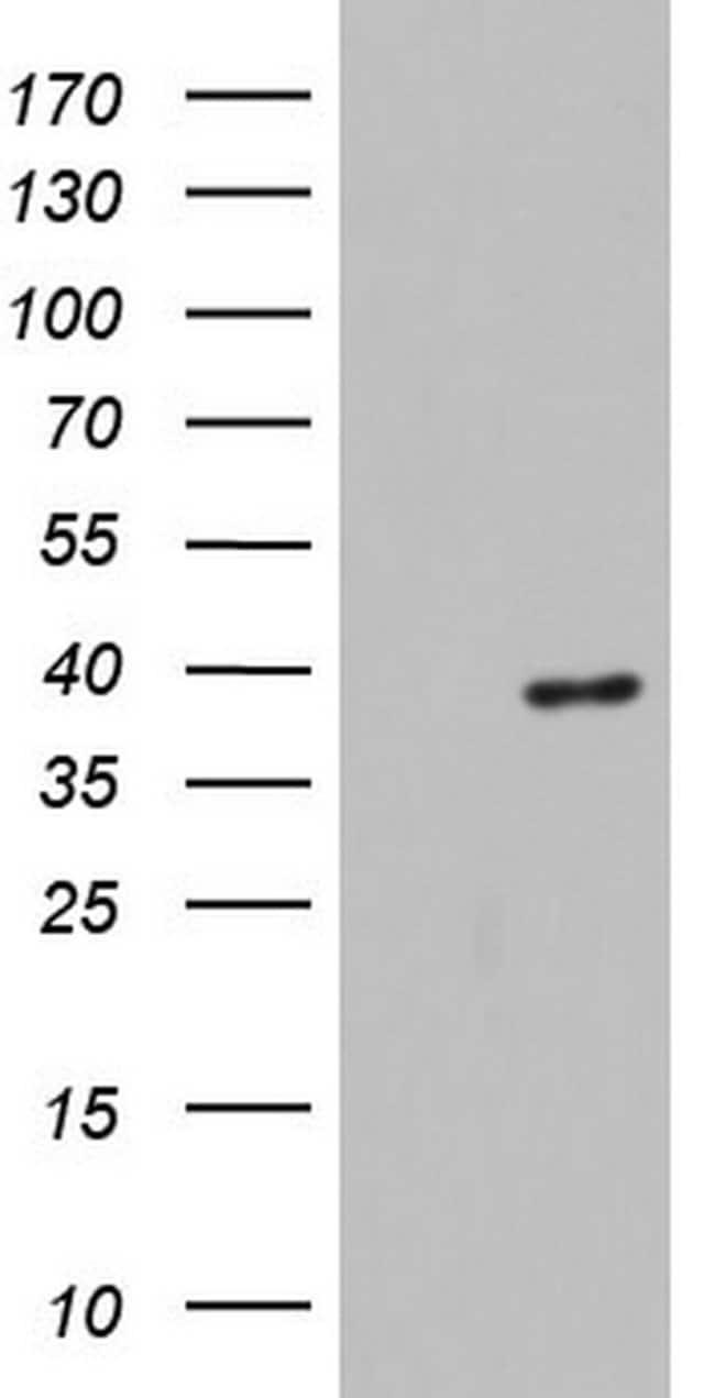 HDAC11 Mouse anti-Human, Clone: OTI1D5, lyophilized, TrueMAB  100 µg;