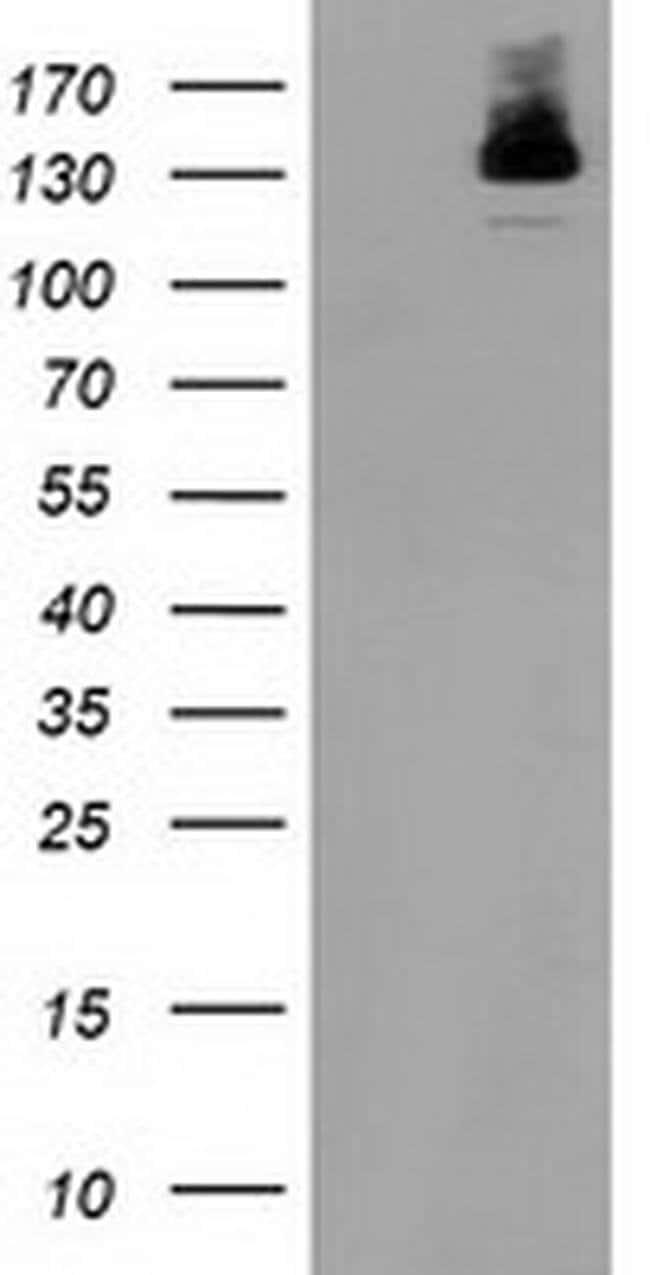 HDAC6 Mouse anti-Human, Clone: OTI1B3, liquid, TrueMAB  100 µL; Unconjugated