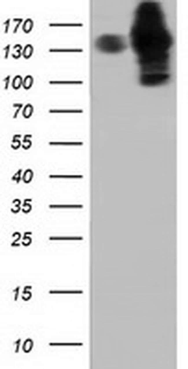 HDAC6 Mouse anti-Canine, Human, Rat, Clone: OTI4C5, liquid, TrueMAB  100