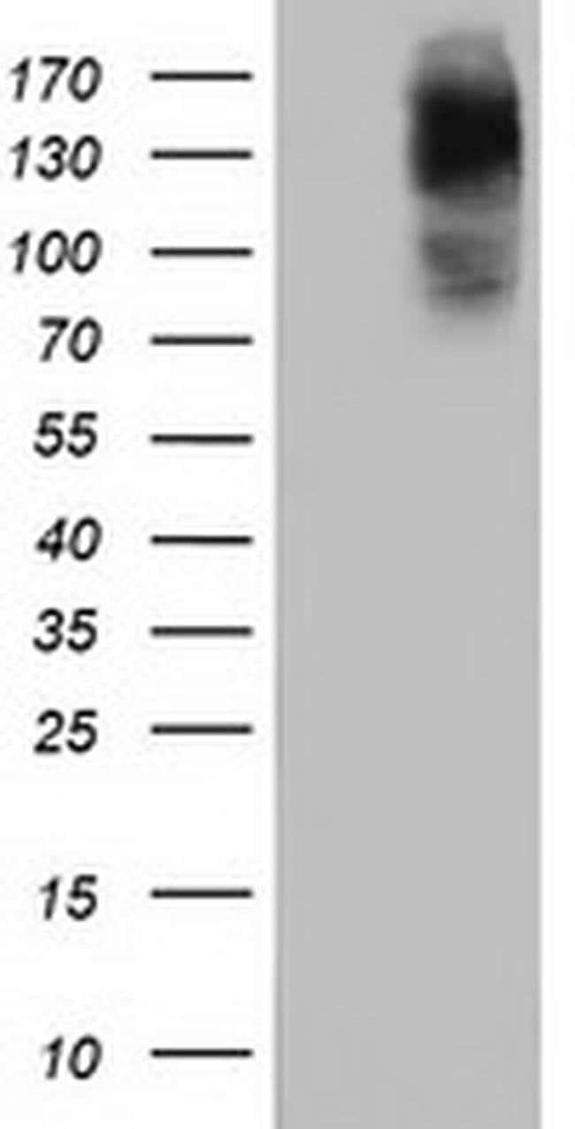 HDAC6 Mouse anti-Canine, Human, Rat, Clone: OTI1D11, liquid, TrueMAB  100