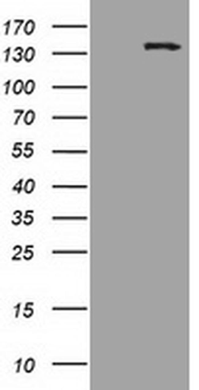 HDAC6 Mouse anti-Human, Clone: OTI3E7, liquid, TrueMAB  100 µL; Unconjugated