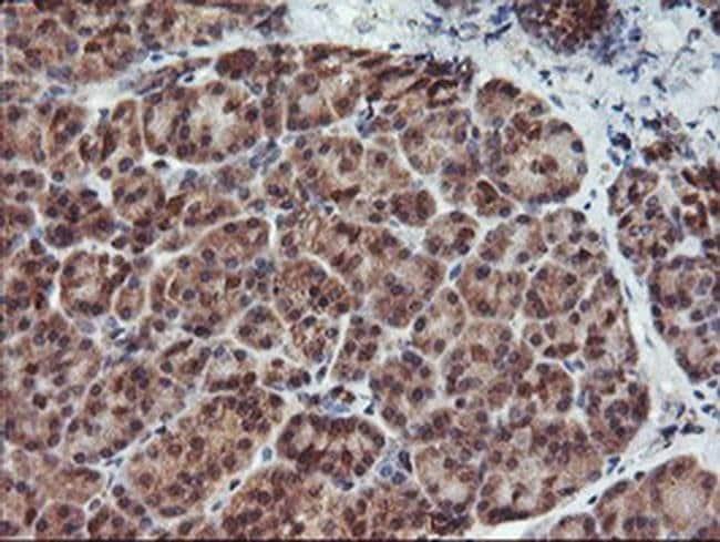 HDHD1 Mouse anti-Human, Clone: OTI3E11, liquid, TrueMAB  100 µL; Unconjugated