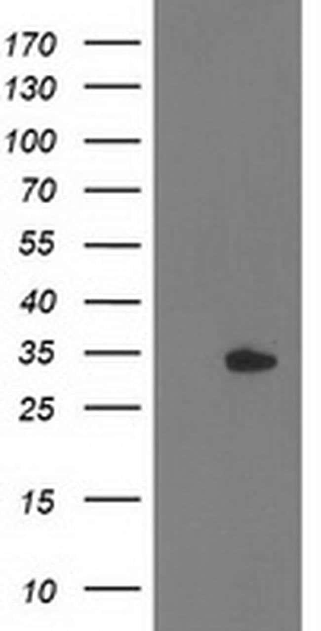 HDHD2 Mouse anti-Human, Clone: OTI5C5, liquid, TrueMAB  100 µL; Unconjugated