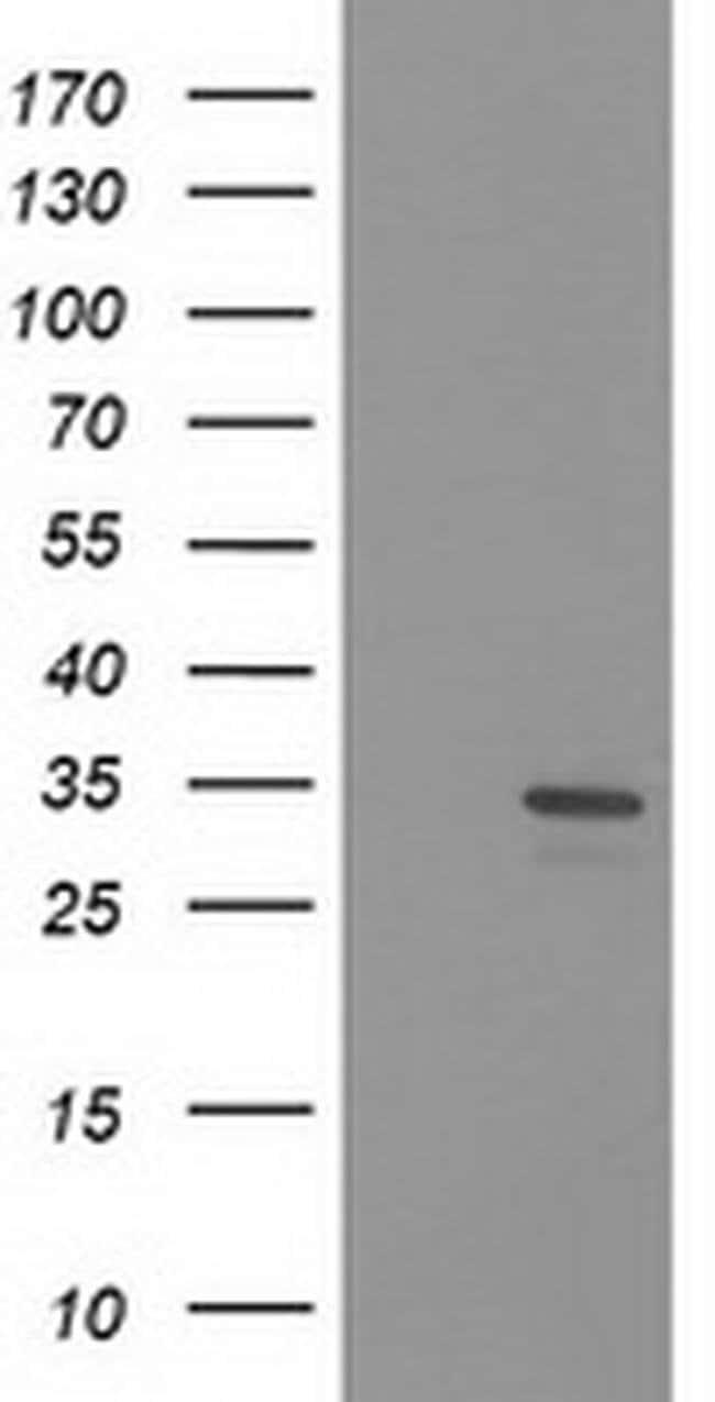 HDHD2 Mouse anti-Human, Clone: OTI3H8, liquid, TrueMAB  100 µL; Unconjugated