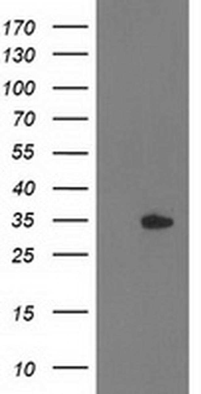 HDHD2 Mouse anti-Human, Clone: OTI2E9, liquid, TrueMAB  100 µL; Unconjugated