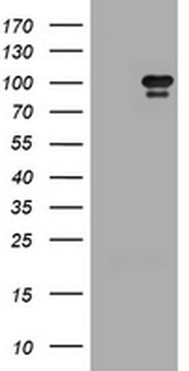 HGS Mouse anti-Human, Clone: OTI1C2, liquid, TrueMAB  100 µL; Unconjugated