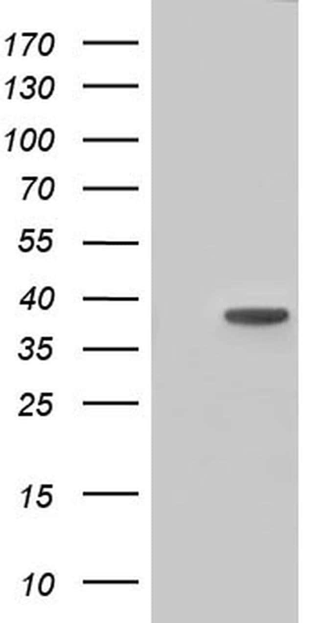 HIBCH Mouse anti-Human, Clone: OTI2A5, liquid, TrueMAB  100 µL; Unconjugated