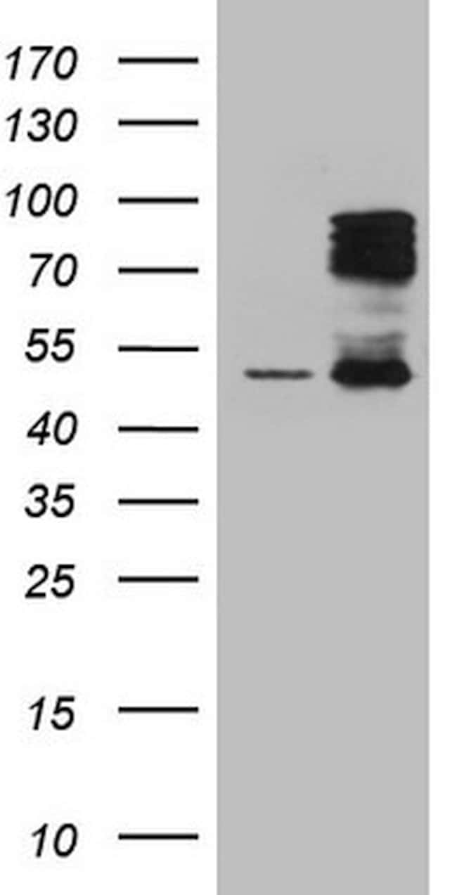 HIPK1 Mouse anti-Human, Clone: OTI4B7, lyophilized, TrueMAB  100 µg;