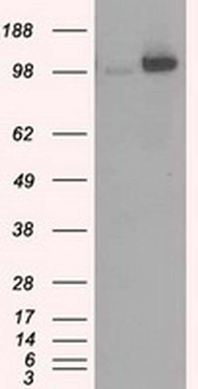 HK2 Mouse anti-Canine, Human, Clone: OTI4C5, liquid, TrueMAB  100 µL;