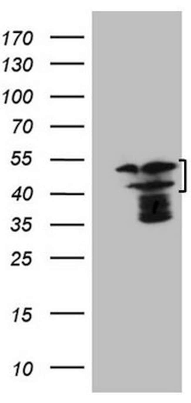 HMG20A Mouse anti-Human, Clone: OTI2H4, lyophilized, TrueMAB  100 µg;