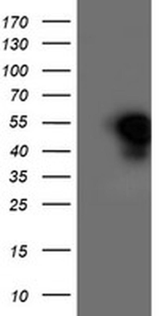 HMOX2 Mouse anti-Human, Clone: OTI4H6, liquid, TrueMAB  100 µL; Unconjugated