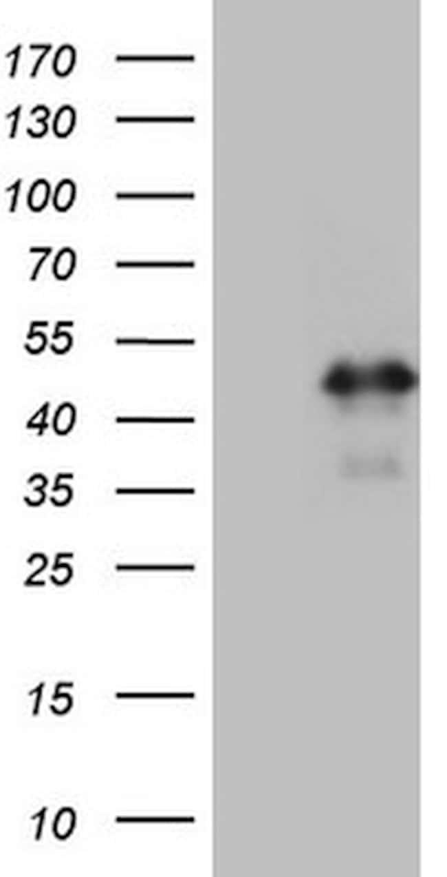 HOXC10 Mouse anti-Human, Clone: OTI1E10, lyophilized, TrueMAB  100 µg;