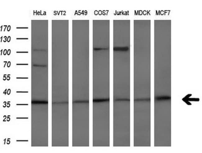 HOXC11 Mouse anti-Human, Clone: OTI3G5, liquid, TrueMAB  100 µL; Unconjugated