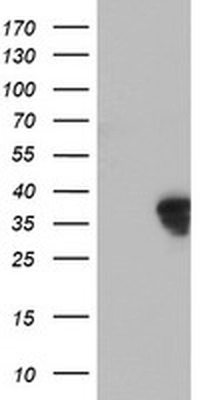 HOXC11 Mouse anti-Human, Clone: OTI3E5, liquid, TrueMAB  100 µL; Unconjugated