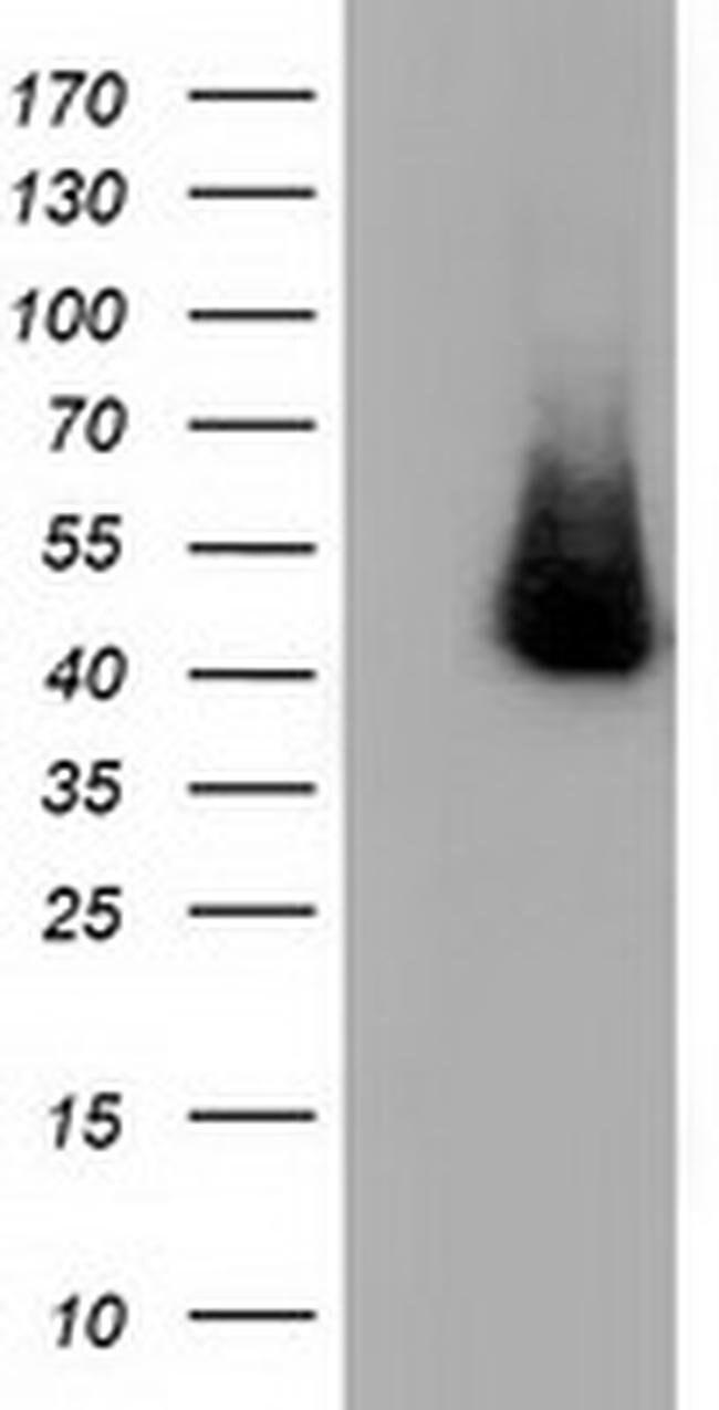 HP Mouse anti-Human, Clone: OTI6H2, liquid, TrueMAB  100 µL; Unconjugated
