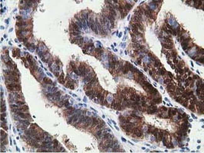 HPGD Mouse anti-Human, Clone: OTI2C10, liquid, TrueMAB  100 µL; Unconjugated