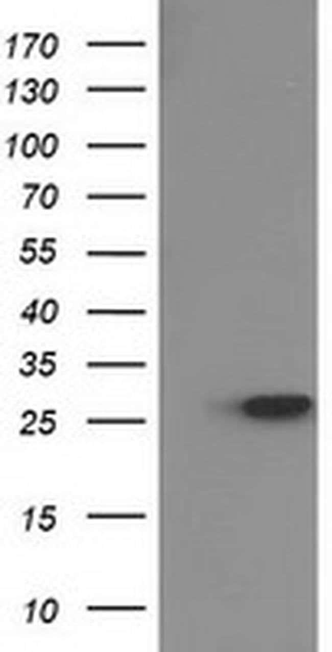 HPGD Mouse anti-Human, Clone: OTI1C10, liquid, TrueMAB  100 µL; Unconjugated