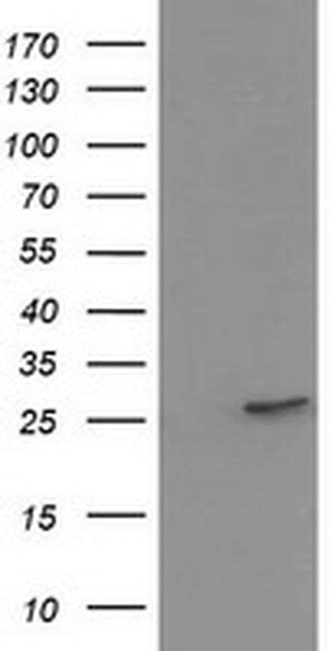 HPGD Mouse anti-Human, Clone: OTI1C12, liquid, TrueMAB  100 µL; Unconjugated