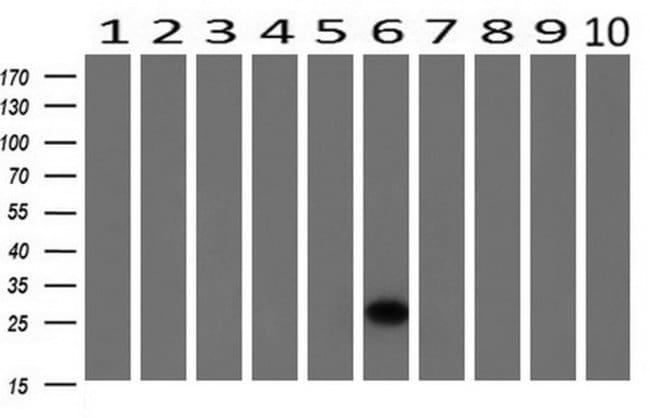 HPGD Mouse anti-Human, Clone: OTI2F5, liquid, TrueMAB  100 µL; Unconjugated