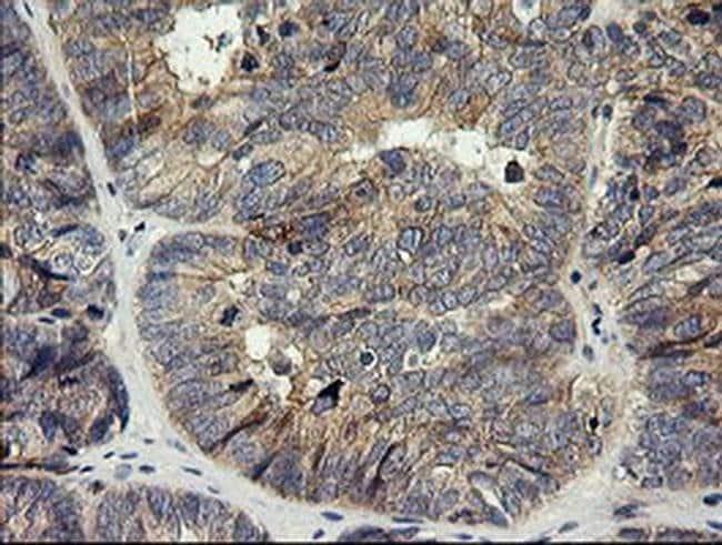 HRAS Mouse anti-Human, Clone: OTI1C8, liquid, TrueMAB  30 µL; Unconjugated