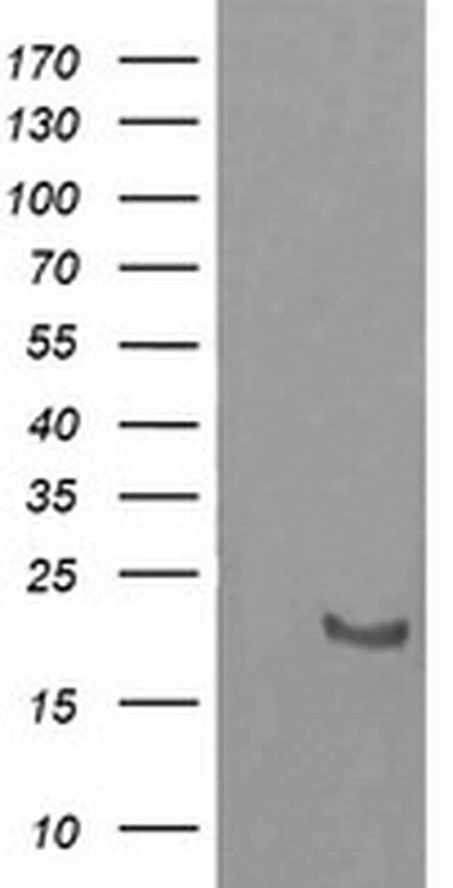 HRAS Mouse anti-Human, Clone: OTI1C8, liquid, TrueMAB  100 µL; Unconjugated