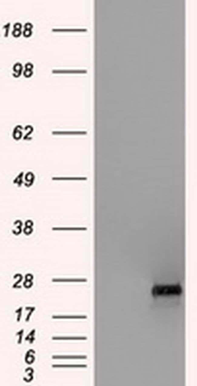 HSD17B10 Mouse anti-Human, Clone: OTI3B5, liquid, TrueMAB  100 µL;