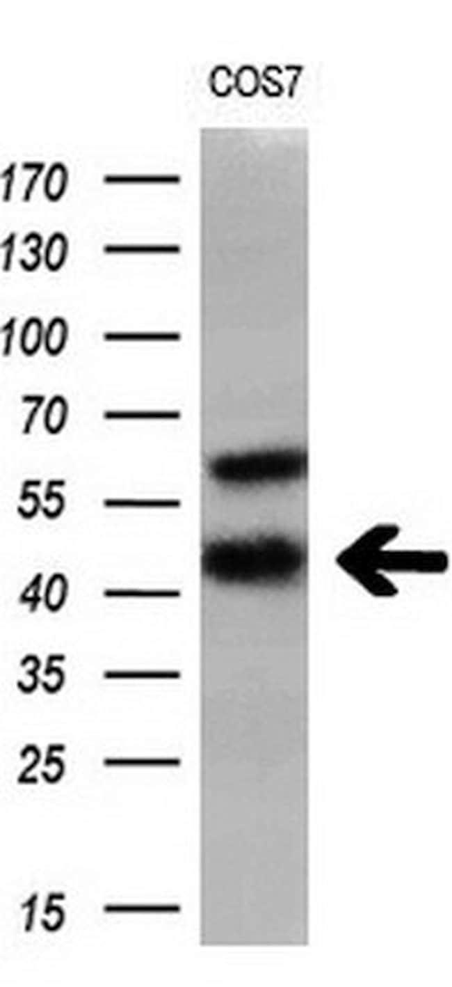 HSD17B2 Mouse anti-Human, Clone: OTI3E9, liquid, TrueMAB  100 µL;