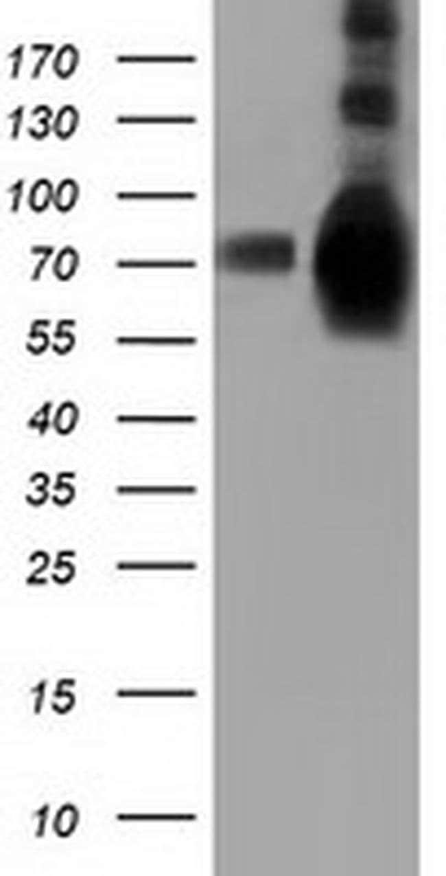 HSPA6 Mouse anti-Human, Clone: OTI1H3, liquid, TrueMAB  100 µL; Unconjugated