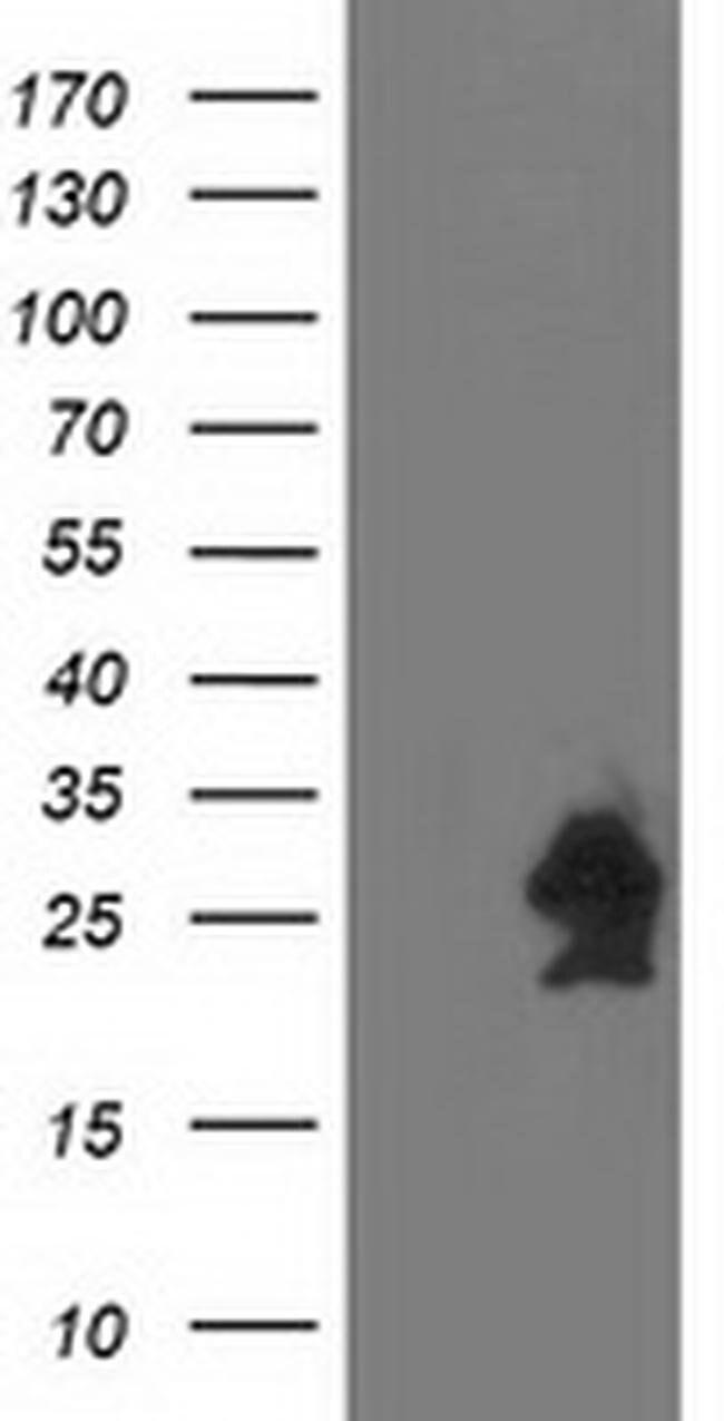 HSPB7 Mouse anti-Human, Clone: OTI1D11, liquid, TrueMAB  100 µL; Unconjugated