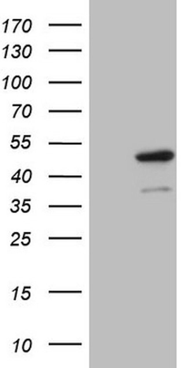 IDO2 Mouse anti-Human, Clone: OTI2D11, lyophilized, TrueMAB  100 µg;