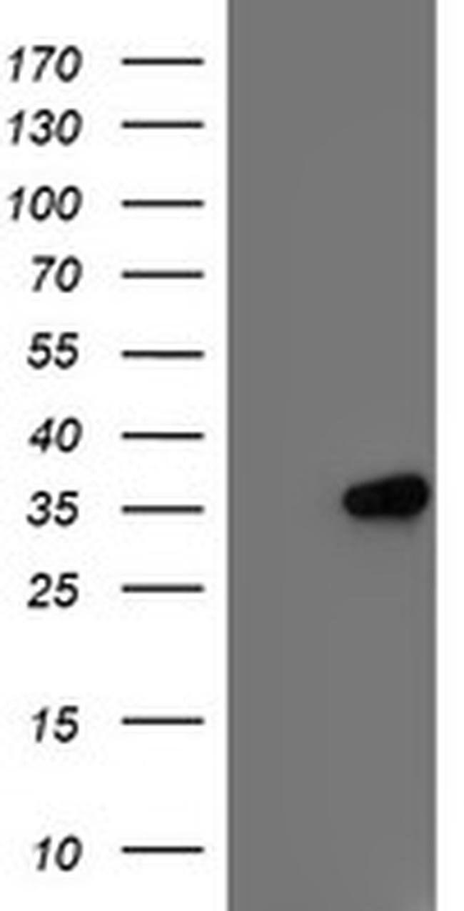 IFI35 Mouse anti-Human, Clone: OTI2D6, liquid, TrueMAB  100 µL; Unconjugated