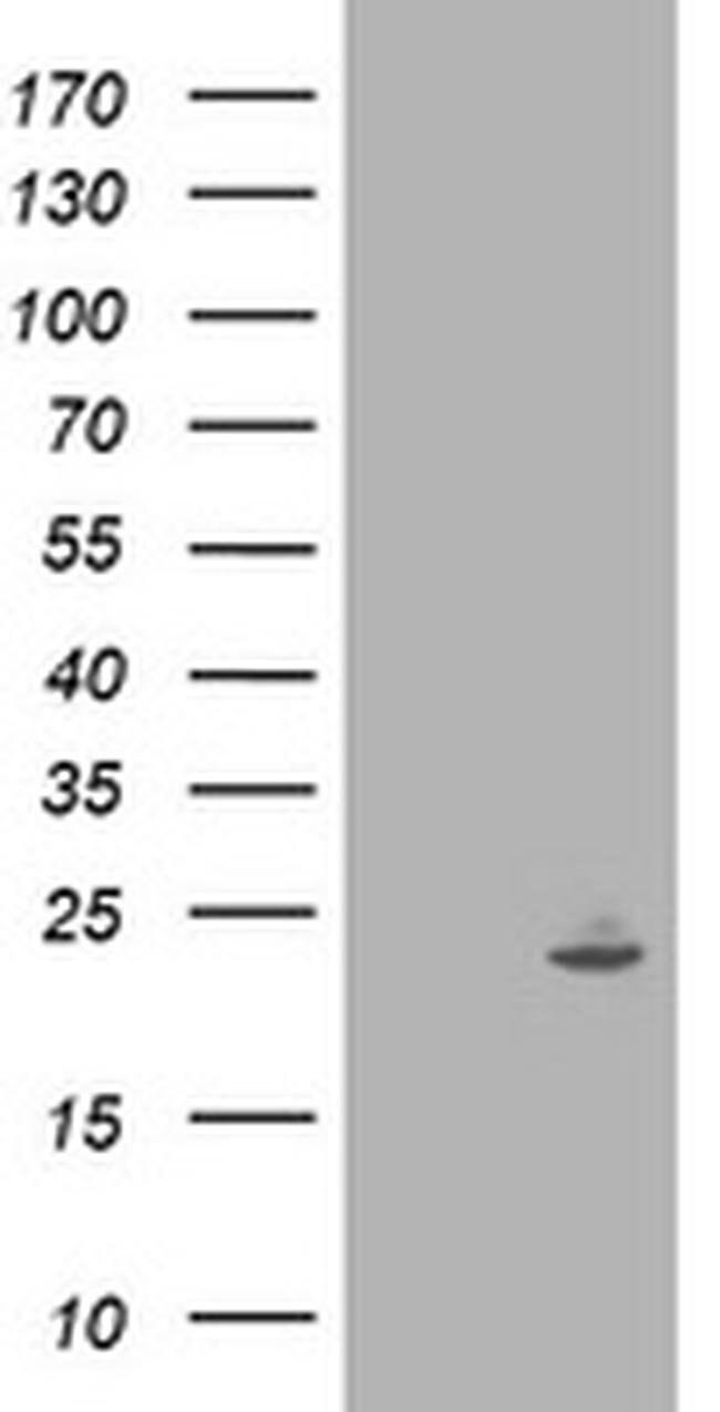 IFI35 Mouse anti-Human, Clone: OTI1C9, liquid, TrueMAB  100 µL; Unconjugated