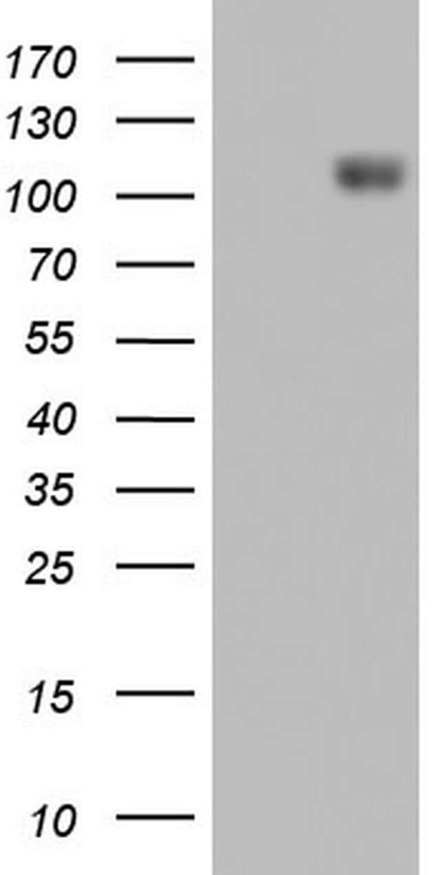 IFIH1 Mouse anti-Human, Clone: OTI3E10, lyophilized, TrueMAB  100 µg;