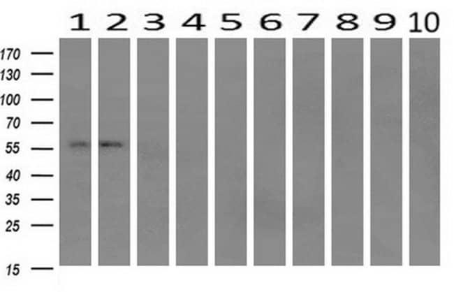 IFIT1 Mouse anti-Human, Mouse, Rat, Clone: OTI3G8, liquid, TrueMAB  100
