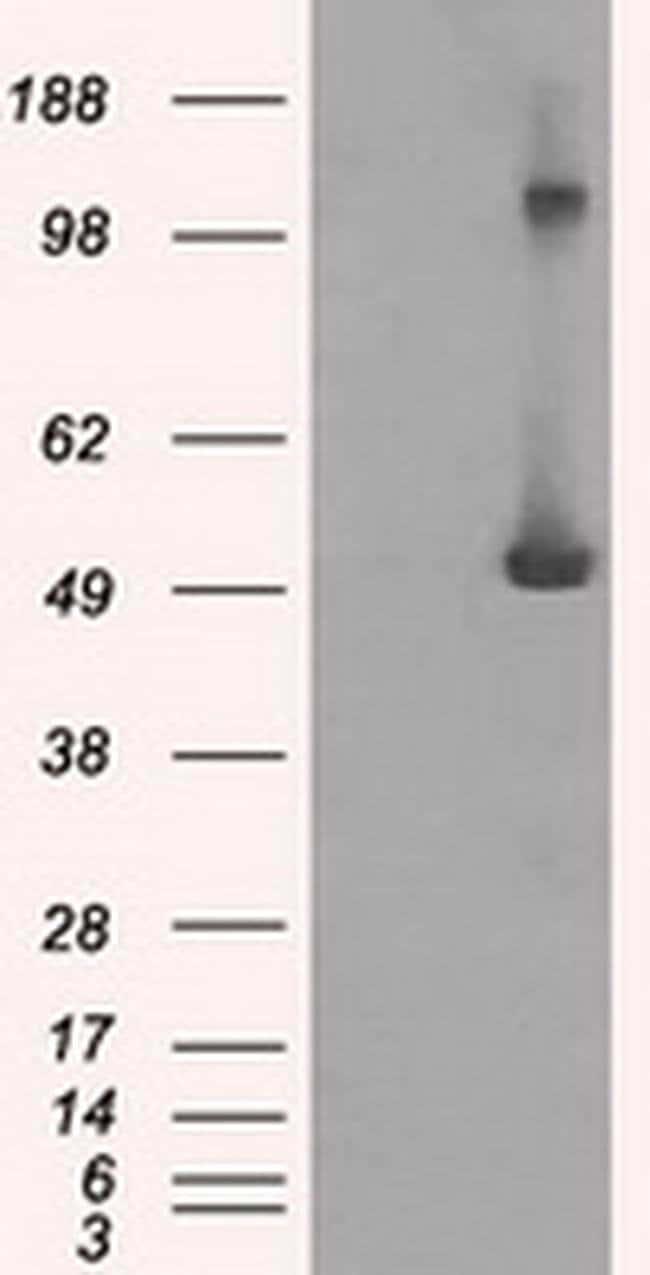 IFIT3 Mouse anti-Human, Clone: OTI1G1, liquid, TrueMAB  30 µL; Unconjugated