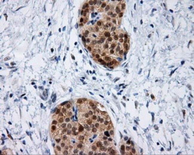 IFT57 Mouse anti-Human, Clone: OTI2G3, liquid, TrueMAB  100 µL; Unconjugated